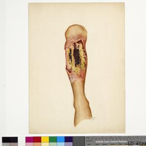 Tropical Ulcer, c.1946