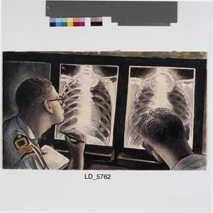 RN X-ray Report