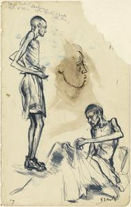Sick and Dying: Cholera, Tarso Camp, 15 September 1943, Two Months After Illness