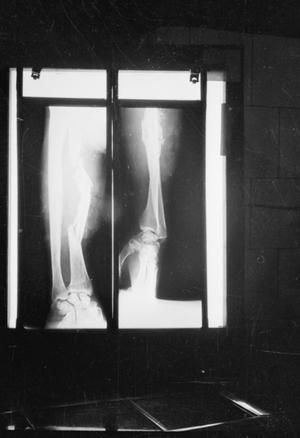 GUY'S HOSPITAL: LIFE IN A LONDON HOSPITAL, ENGLAND, 1941
