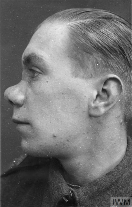 the work of major harold gillies in the field of plastic surgery during the first world war  hu