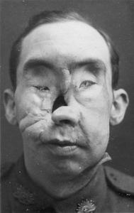 THE WORK OF MAJOR HAROLD GILLIES IN THE FIELD OF PLASTIC SURGERY DURING THE FIRST WORLD WAR
