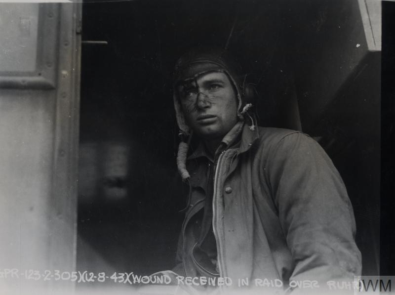 Injured Staff Sergeant Jayson Smart, 305th Bomb Group, immediately after a mission, August 1943.
