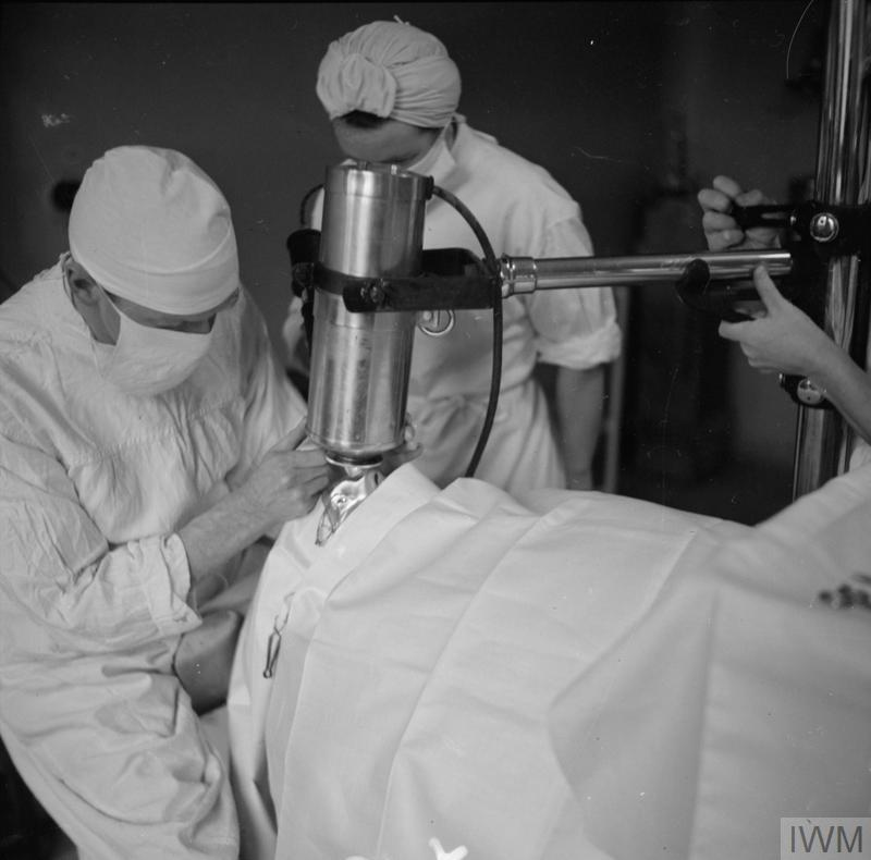 Specialist Medical Service: A patient's eyelids are held back using clips as an ophthalmic surgeon uses a powerful electro-magnet to remove shell fragments from his eye at the British Military Hospital in Brussels.